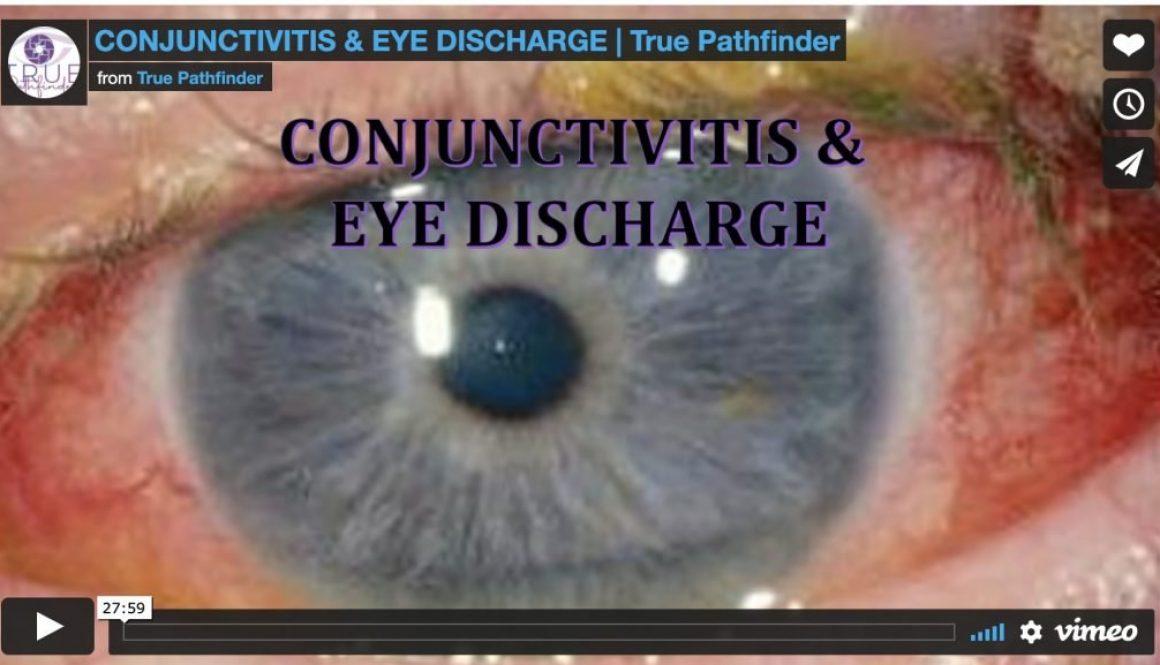 Conjunctivitis & Eye Discharge