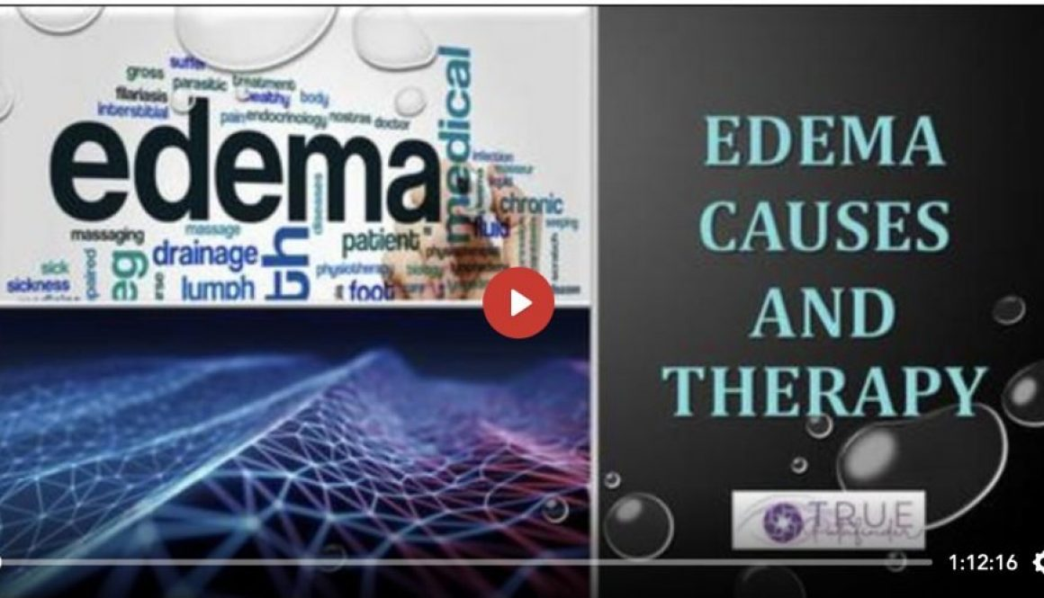 Edema Causes and Therapy